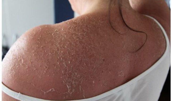 tips-for-avoiding-melanoma