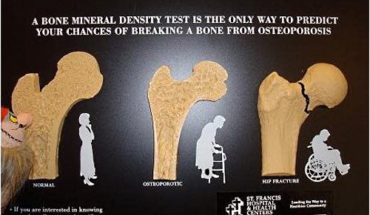 bone-density-screening